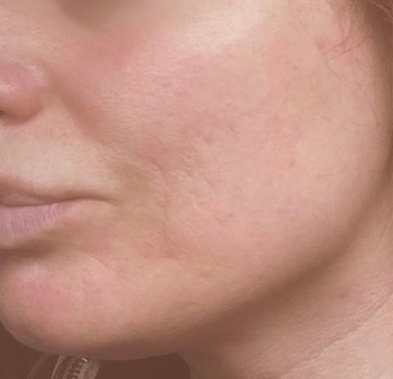 behandeling littekens dermaroller peeling na foto
