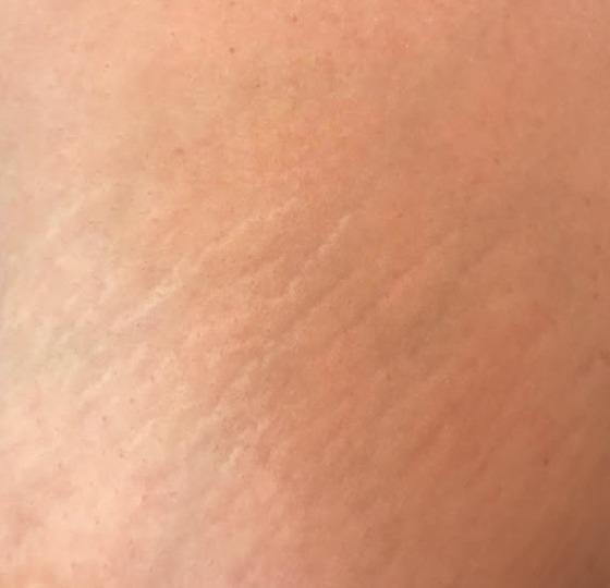 striae navel strakke huid striae behandeling voor foto