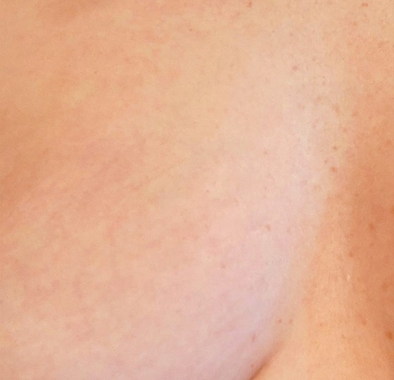 striae navel strakke huid striae behandeling na foto