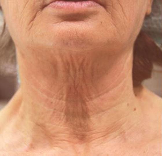 huidverstrakking hifu behandeling foto voor halsbehandeling