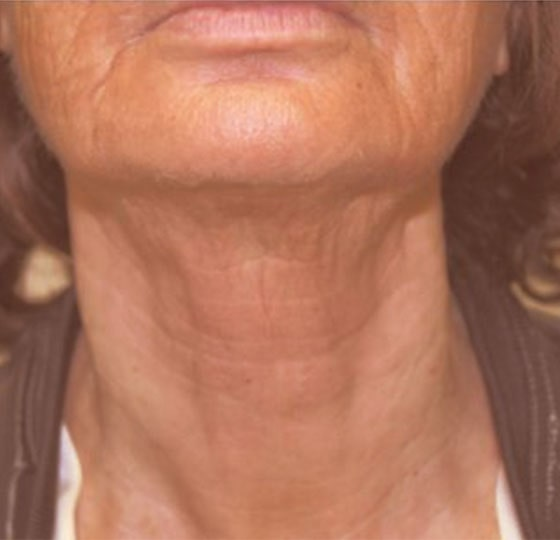 huidverstrakking hifu behandeling foto na halsbehandeling