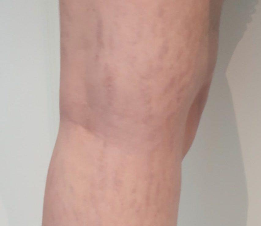 Striae behandeling benen