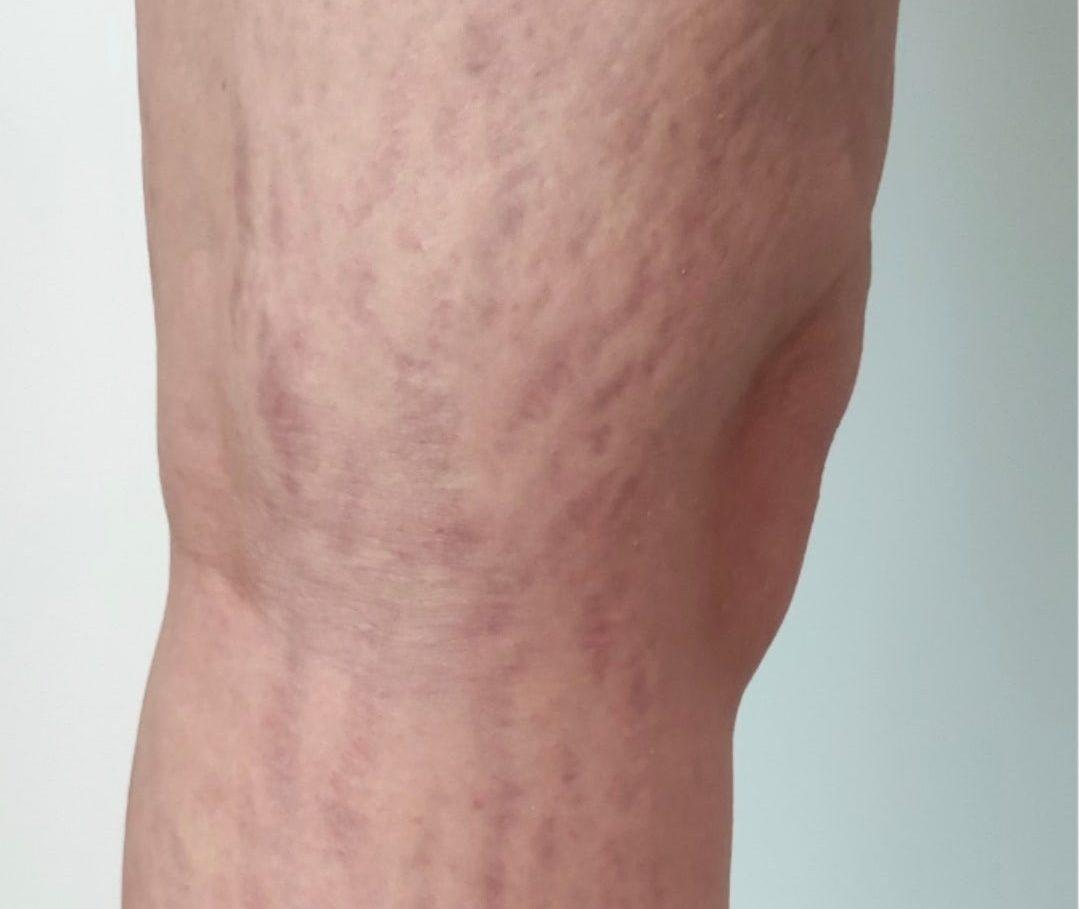 Striae behandeling been