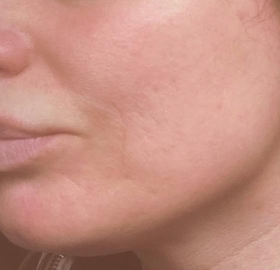 acne behandeling peeling na foto
