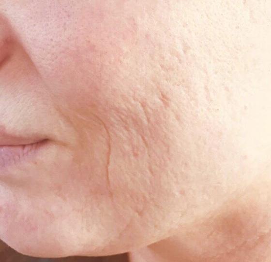 acne behandeling peeling voor foto