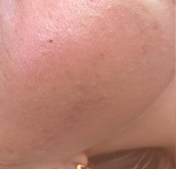 acne behandeling peeling na foto strakke huid