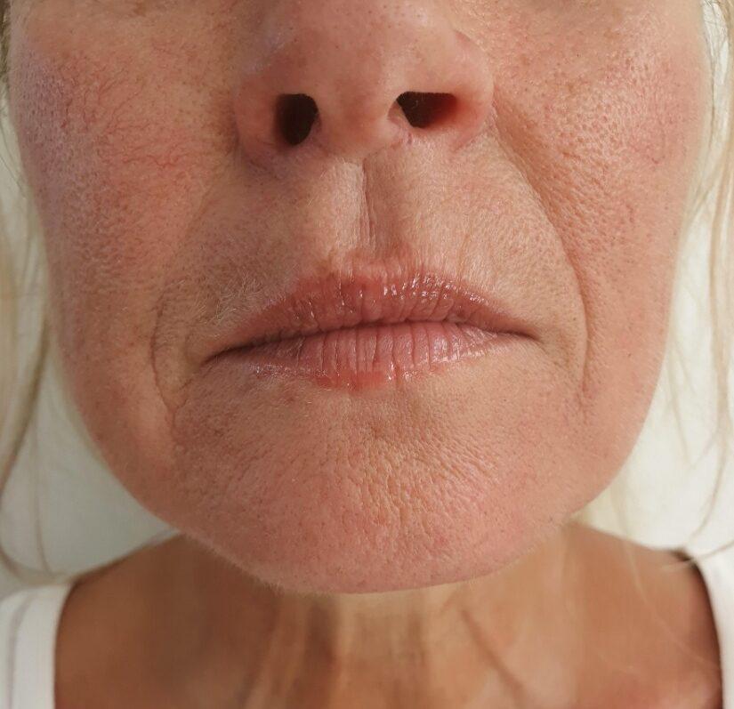 huidverstrakking behandeling
