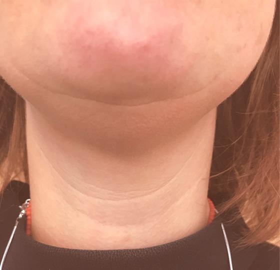 contourverbetering ultraformer strakkere huid voor behandeling