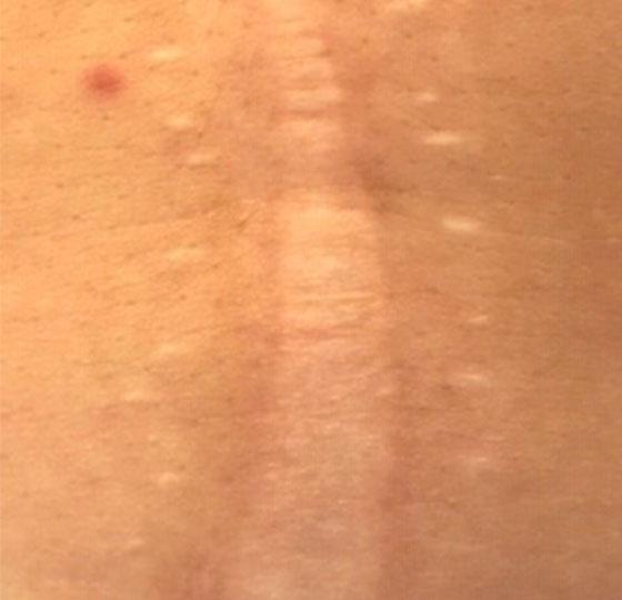 behandeling littekens dermaroller peeling voor foto