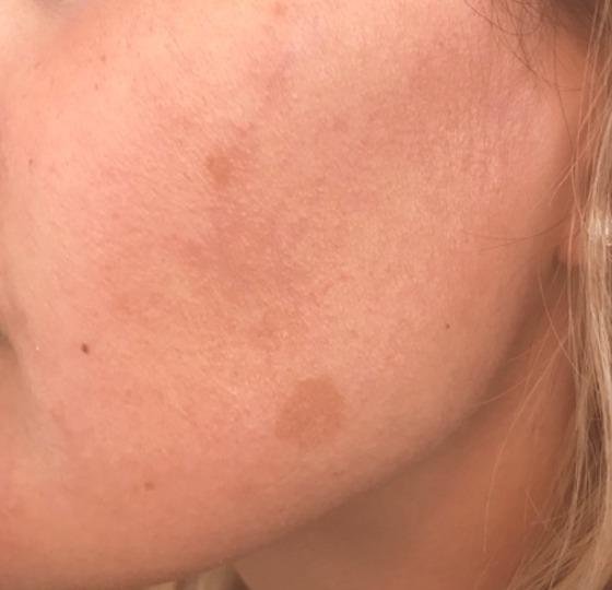 pigmentatie diepe peeling vernieuwde huid voor foto