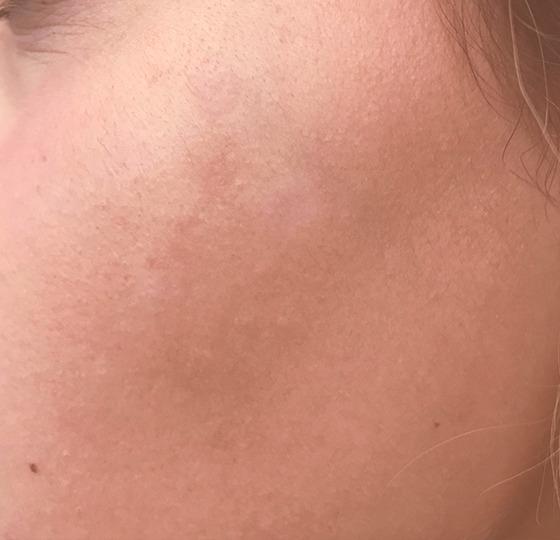 pigmentatie diepe peeling vernieuwde huid na foto