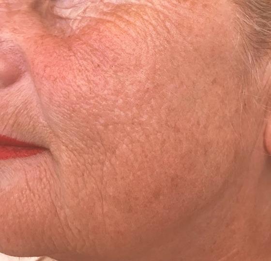 diepe rimpels peeling na foto, rimpel behandeling