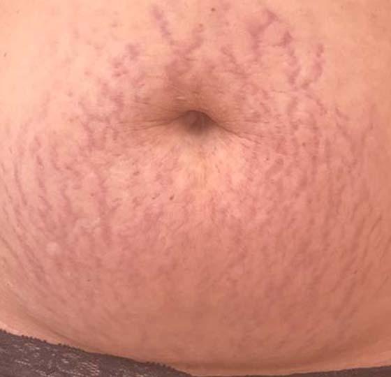 striae navel egale huid striae behandeling