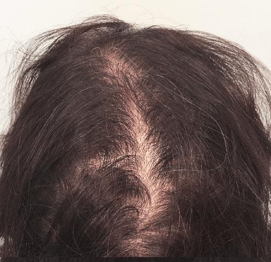 haaruitval mesotherapie hair behandeling voor foto