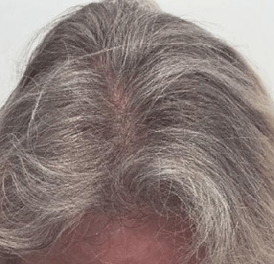 haaruitval mesotherapie hair behandeling na foto